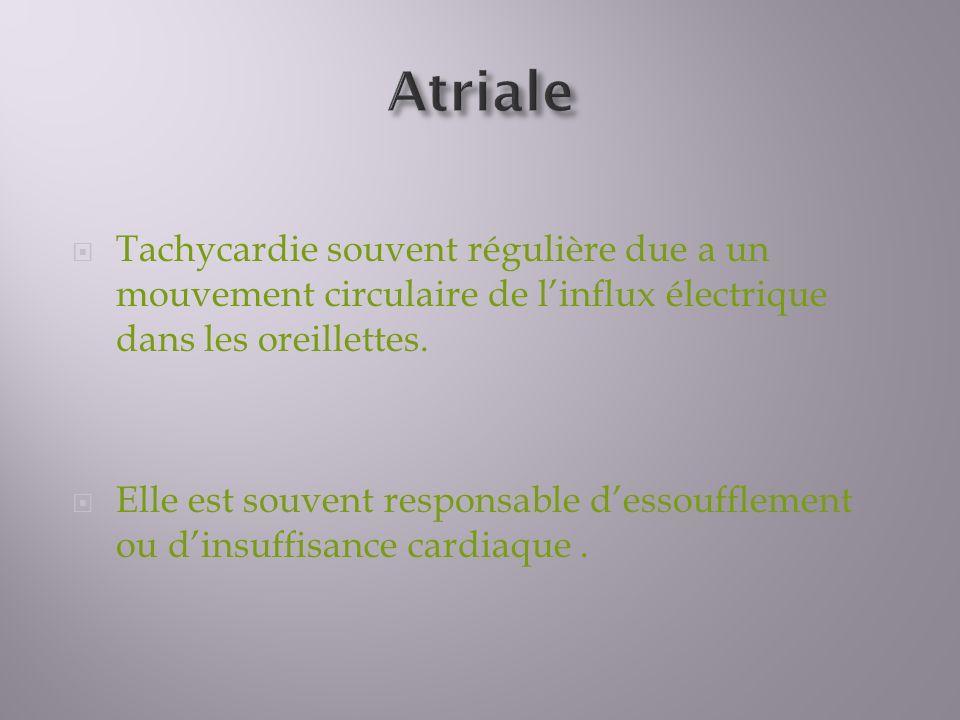 Atriale Tachycardie souvent régulière due a un mouvement circulaire de l'influx électrique dans les oreillettes.