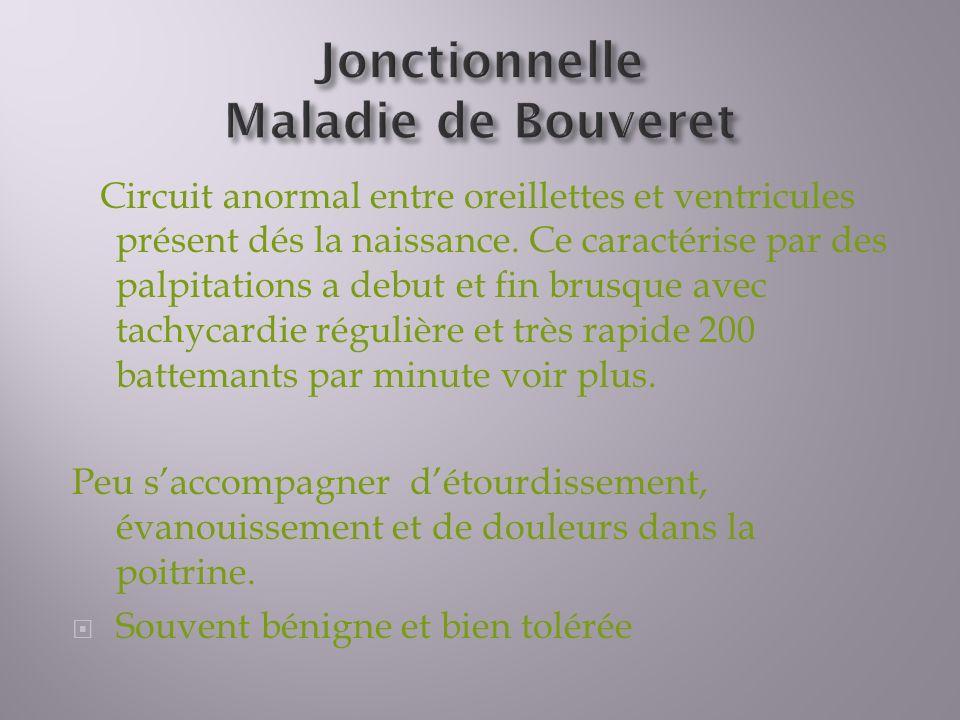 Jonctionnelle Maladie de Bouveret