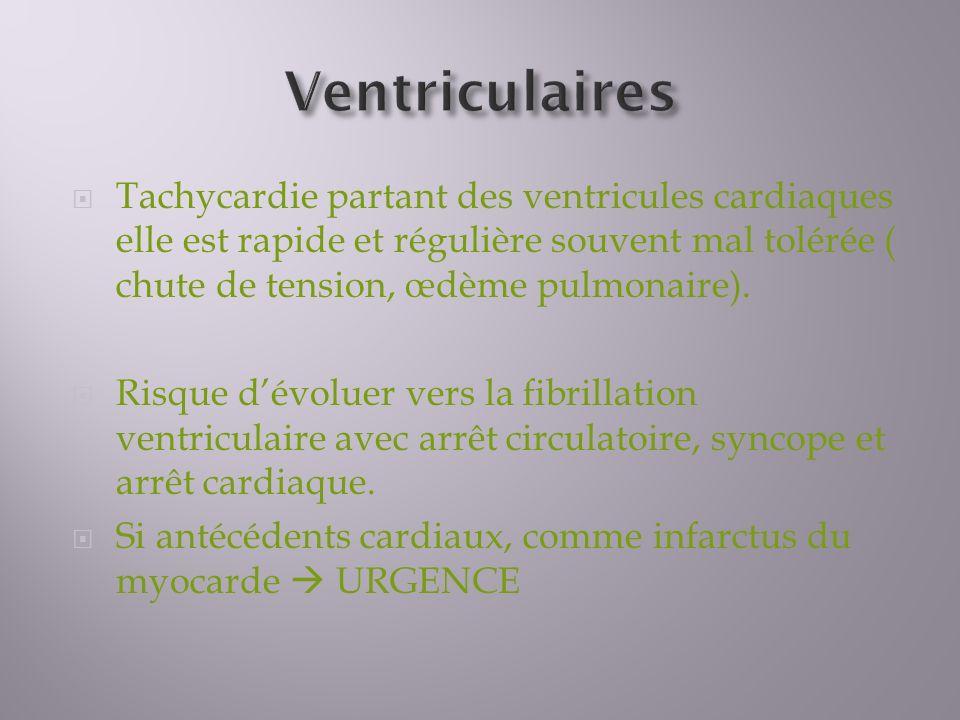 Ventriculaires Tachycardie partant des ventricules cardiaques elle est rapide et régulière souvent mal tolérée ( chute de tension, œdème pulmonaire).