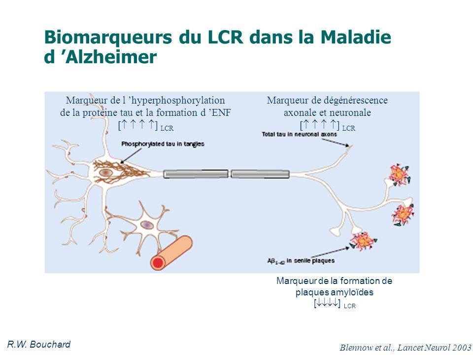 Biomarqueurs du LCR dans la Maladie d 'Alzheimer