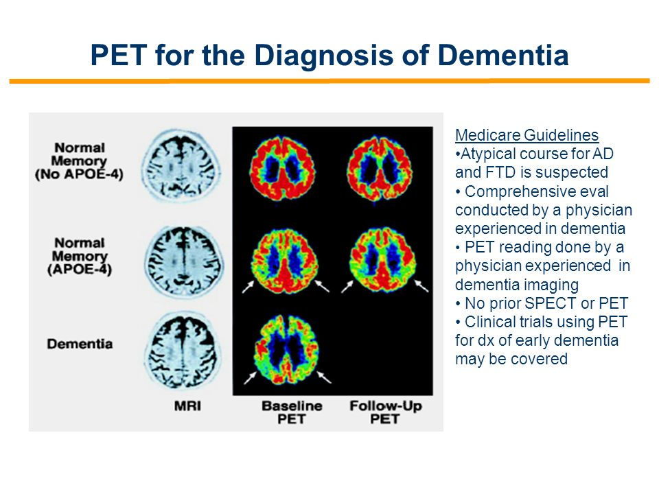 PET for the Diagnosis of Dementia