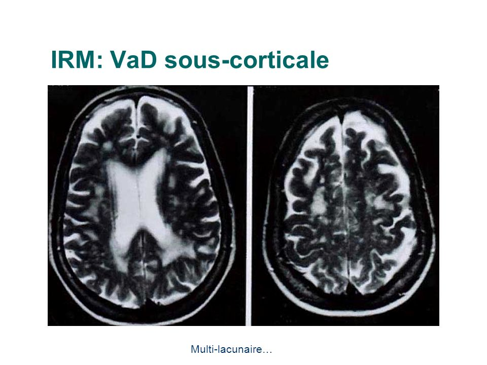IRM: VaD sous-corticale