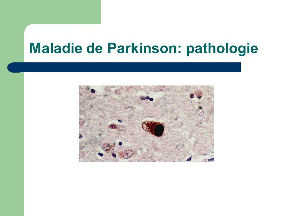 Maladie de Parkinson: pathologie