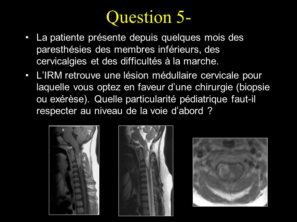 Question 5-La patiente présente depuis quelques mois des paresthésies des membres inférieurs, des cervicalgies et des difficultés à la marche.