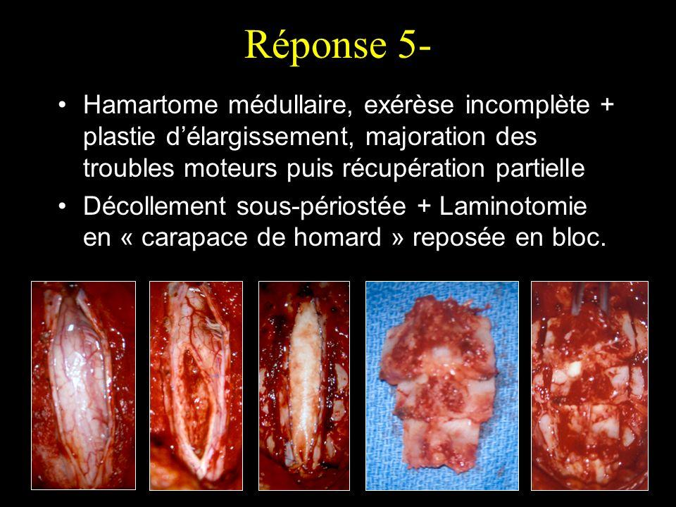 Réponse 5-Hamartome médullaire, exérèse incomplète + plastie d'élargissement, majoration des troubles moteurs puis récupération partielle.