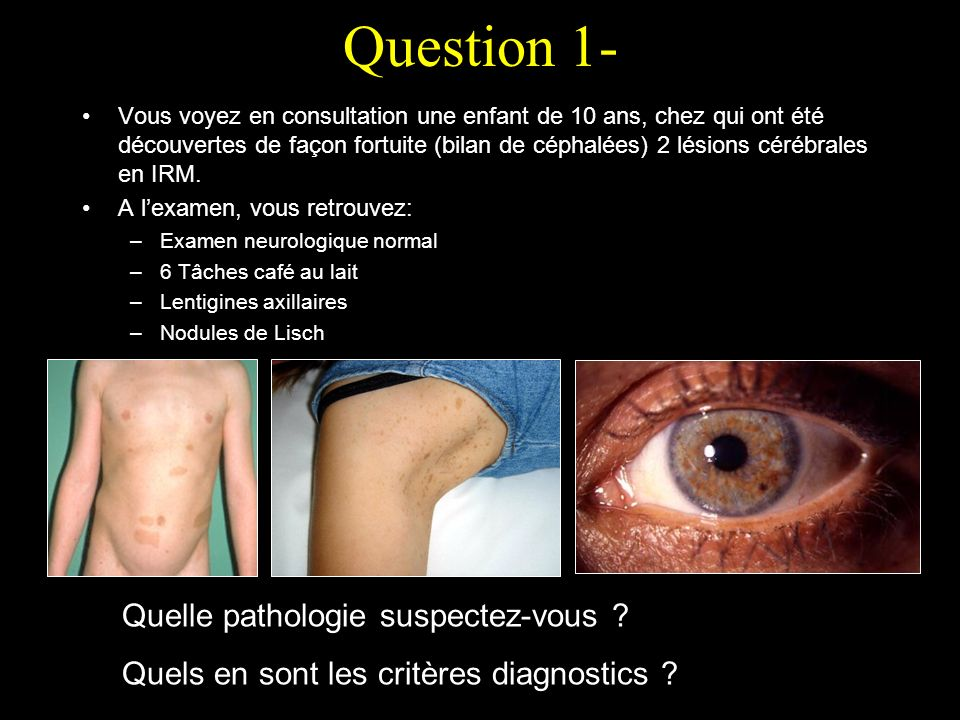 Question 1- Quelle pathologie suspectez-vous