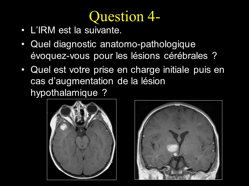 Question 4- L'IRM est la suivante.