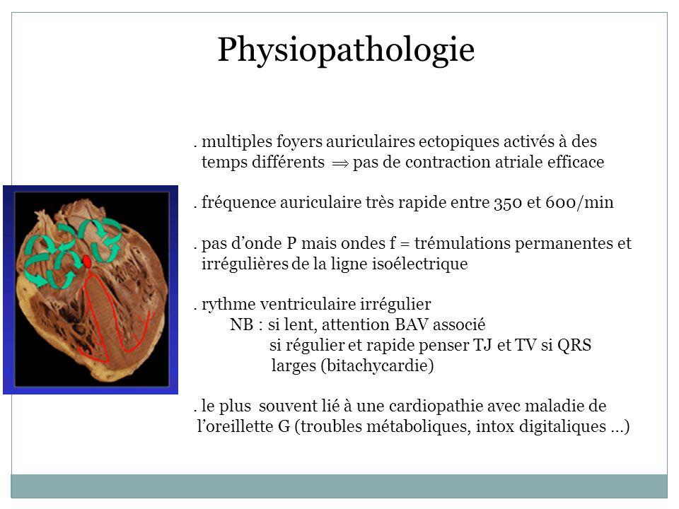 Physiopathologie . multiples foyers auriculaires ectopiques activés à des temps différents  pas de contraction atriale efficace.