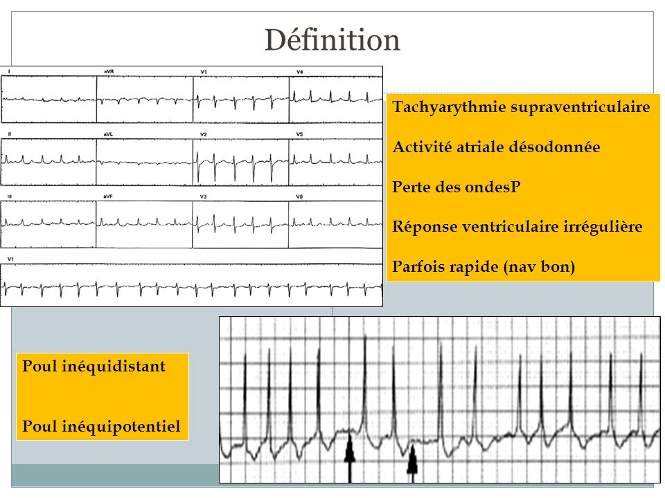 Définition Tachyarythmie supraventriculaire