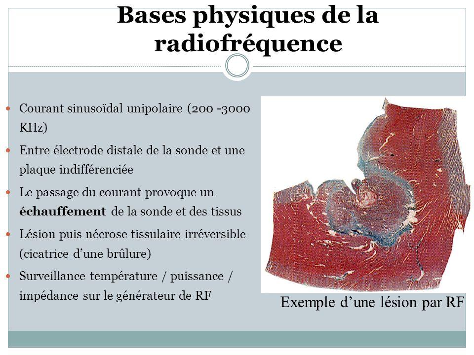 Bases physiques de la radiofréquence