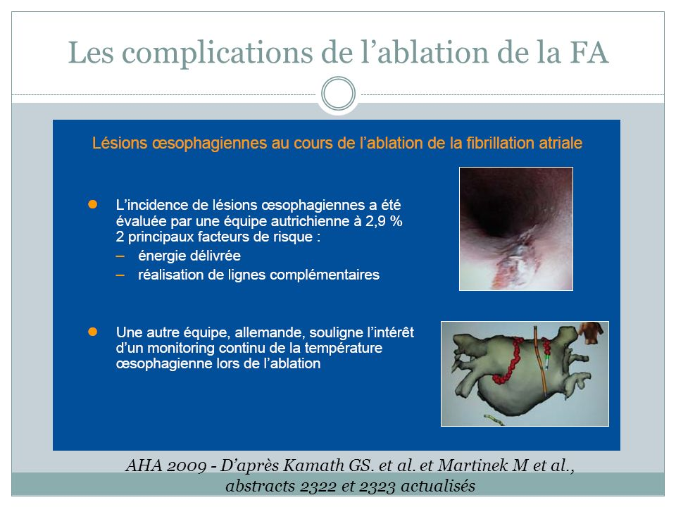 Les complications de l'ablation de la FA
