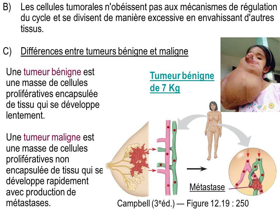 C) Différences entre tumeurs bénigne et maligne