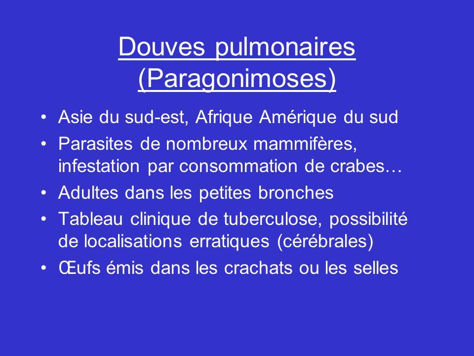 Douves pulmonaires (Paragonimoses)