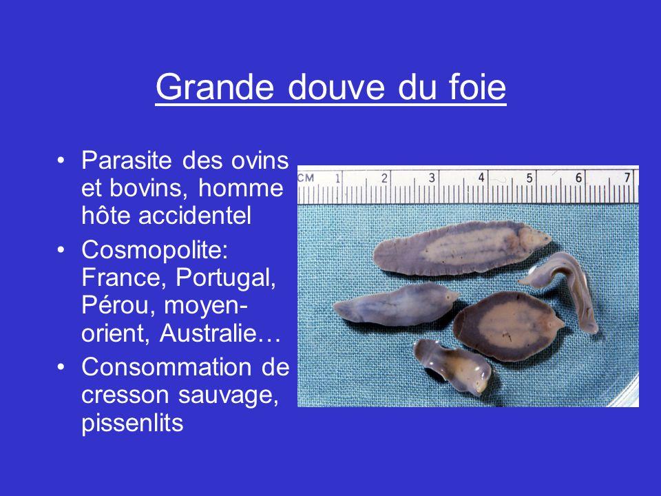 Grande douve du foie Parasite des ovins et bovins, homme hôte accidentel. Cosmopolite: France, Portugal, Pérou, moyen-orient, Australie…