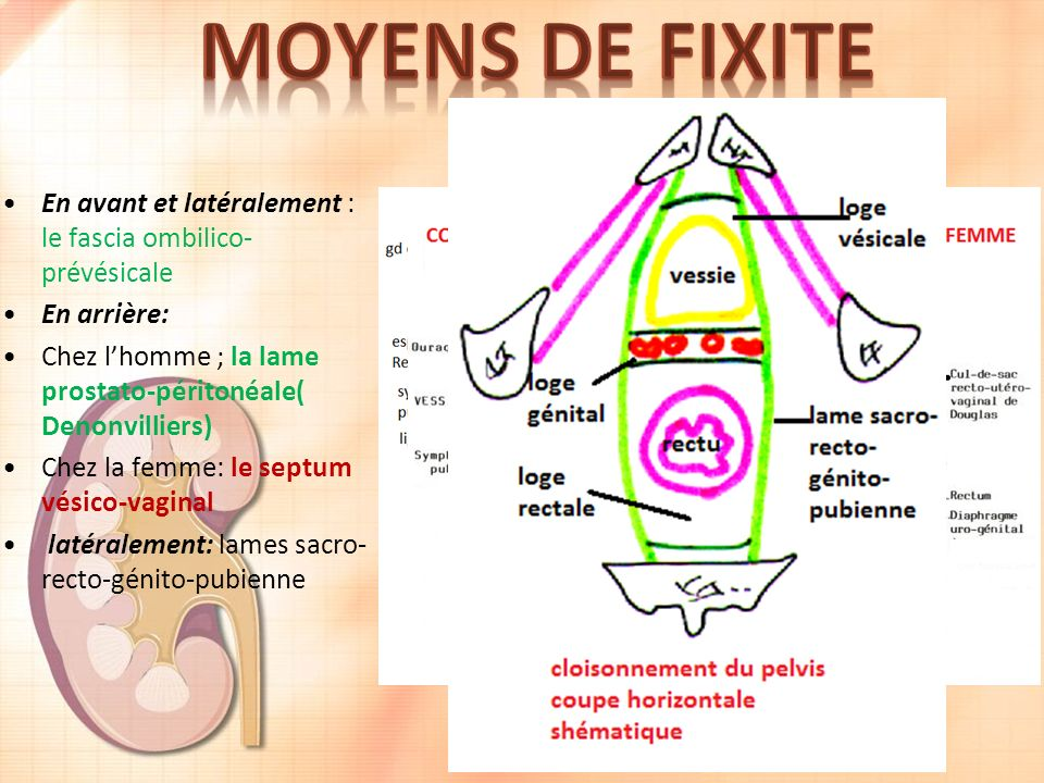 MOYENS DE FIXITE En avant et latéralement : le fascia ombilico-prévésicale. En arrière: Chez l'homme ; la lame prostato-péritonéale( Denonvilliers)