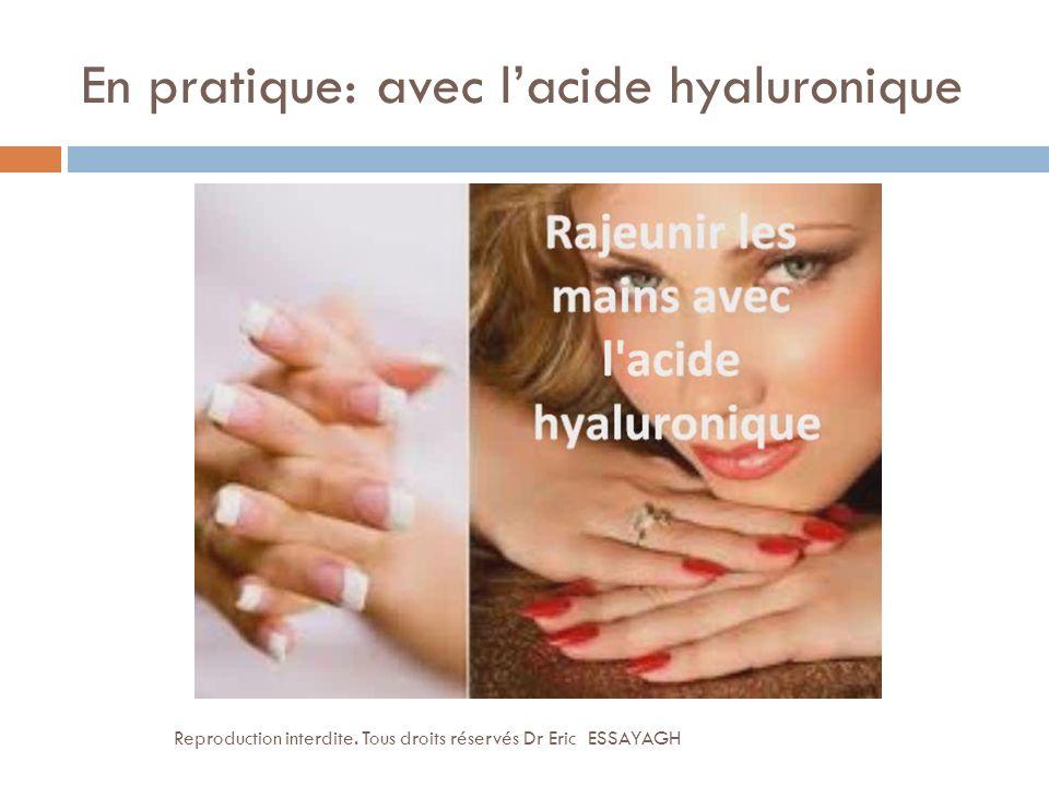En pratique: avec l'acide hyaluronique