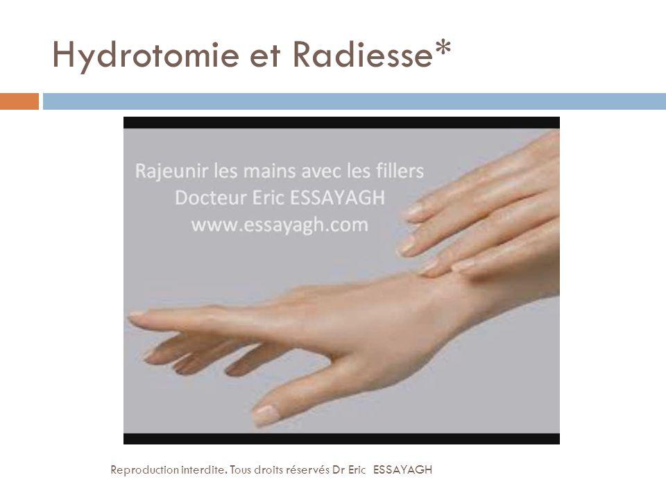 Hydrotomie et Radiesse*