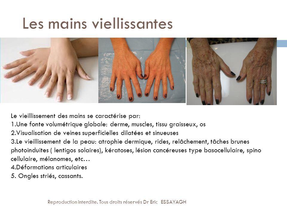 Les mains viellissantes