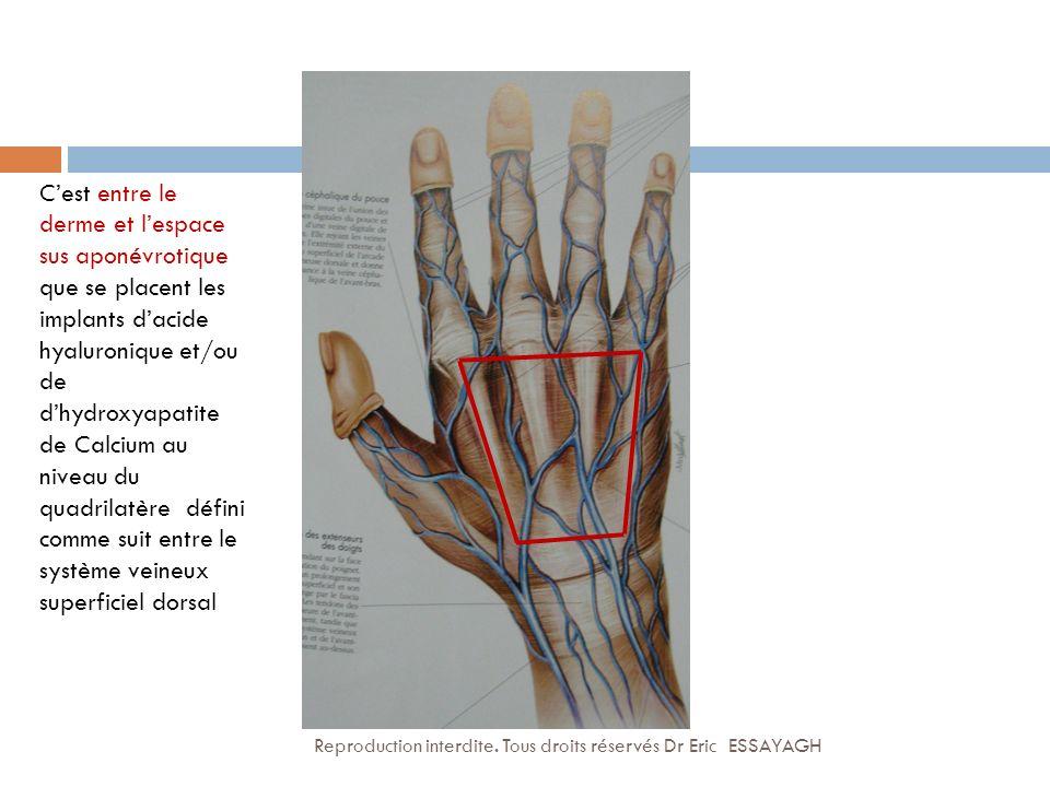 C'est entre le derme et l'espace sus aponévrotique que se placent les implants d'acide hyaluronique et/ou de d'hydroxyapatite de Calcium au niveau du quadrilatère défini comme suit entre le système veineux superficiel dorsal