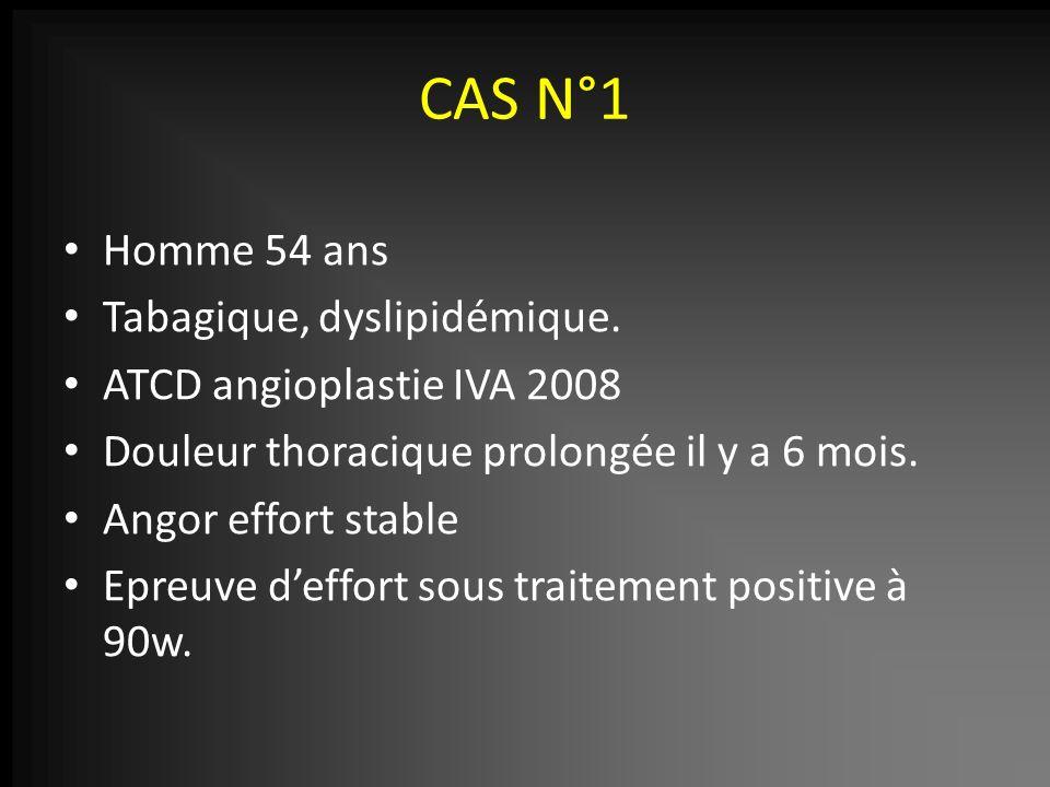 CAS N°1 Homme 54 ans Tabagique, dyslipidémique.