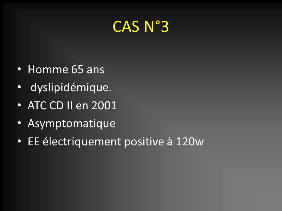 CAS N°3 Homme 65 ans dyslipidémique. ATC CD II en 2001 Asymptomatique