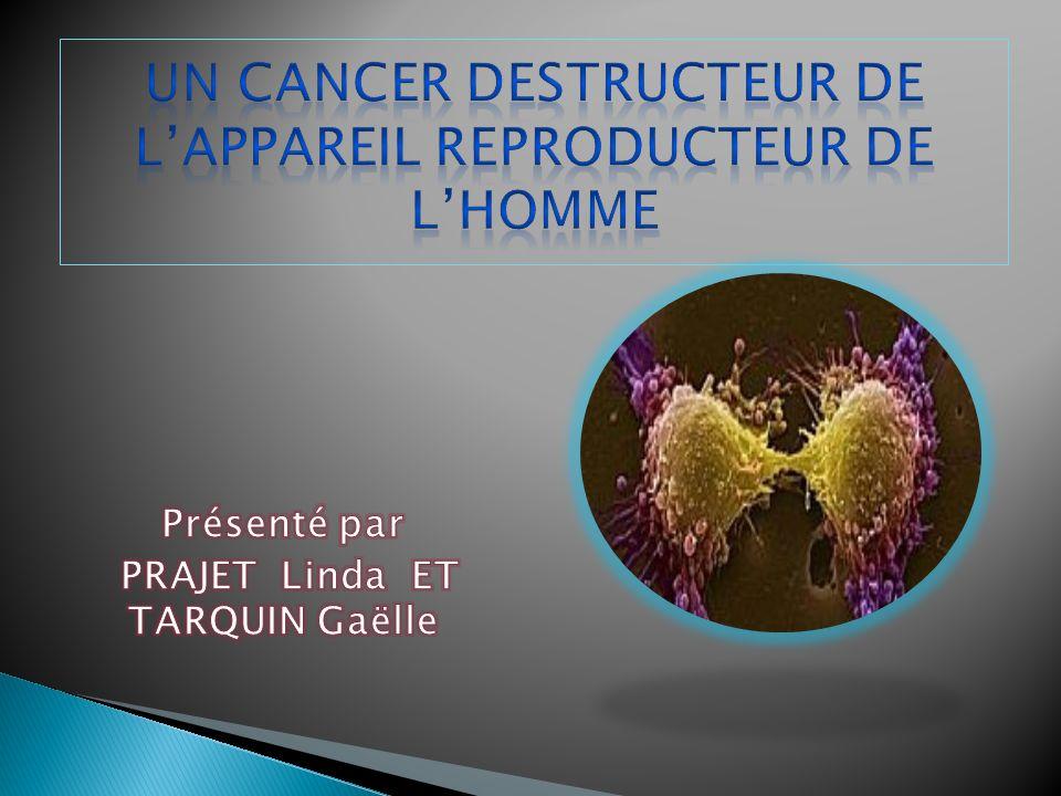 Un cancer destructeur de l'appareil reproducteur de l'homme