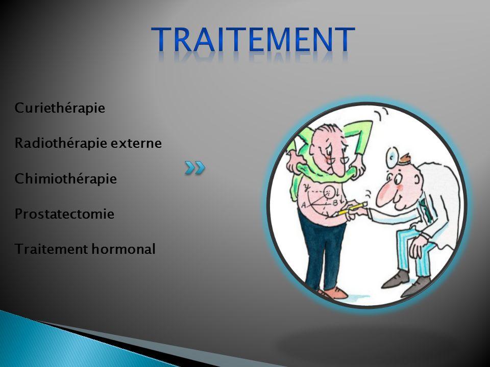 Traitement Curiethérapie Radiothérapie externe Chimiothérapie
