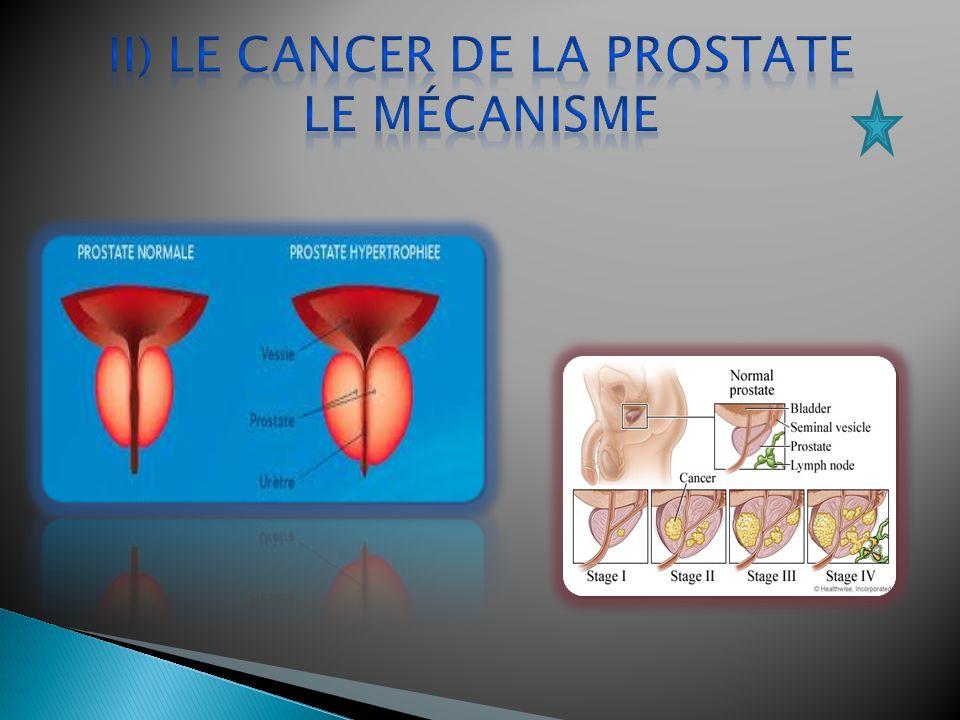 II) Le cancer de la prostate Le mécanisme