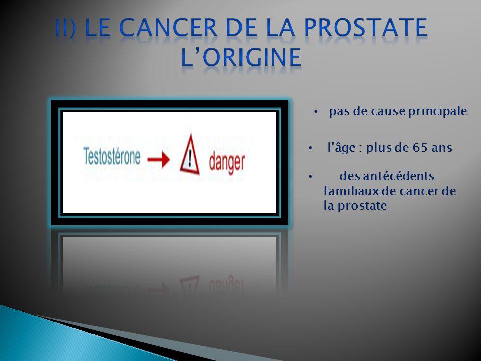 II) Le cancer de la prostate l'Origine