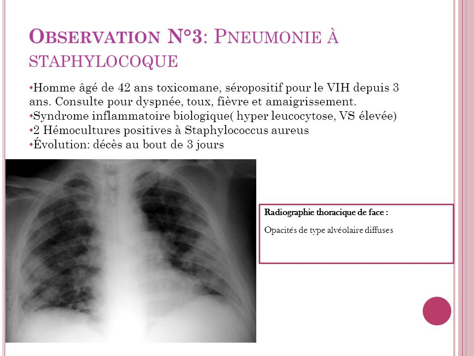 Observation N°3: Pneumonie à staphylocoque