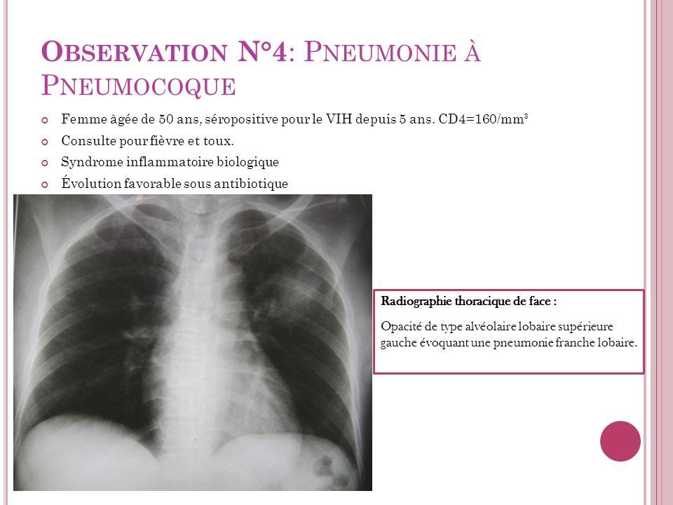 Observation N°4: Pneumonie à Pneumocoque