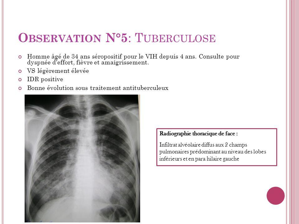Observation N°5: Tuberculose