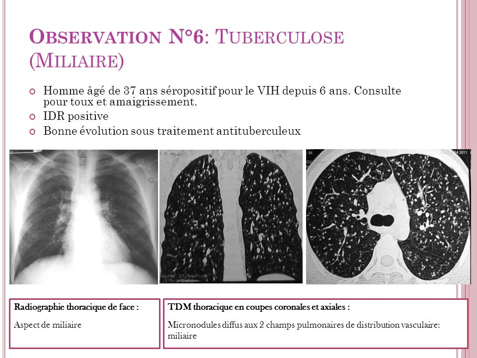 Observation N°6: Tuberculose (Miliaire)
