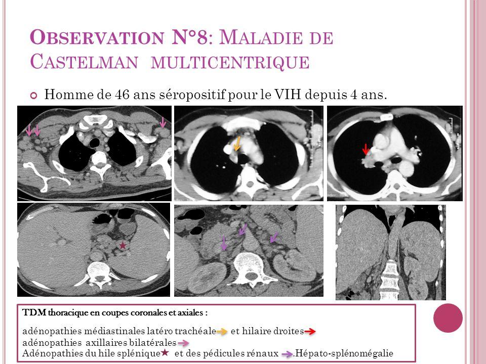 Observation N°8: Maladie de Castelman multicentrique