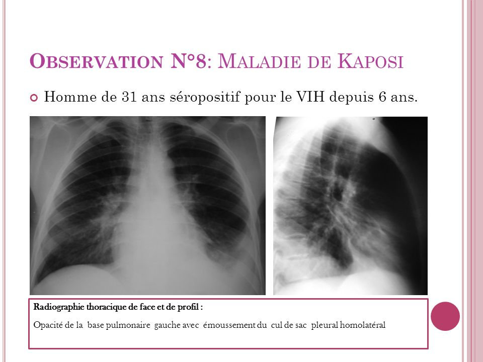 Observation N°8: Maladie de Kaposi