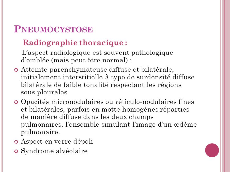 Pneumocystose Radiographie thoracique :