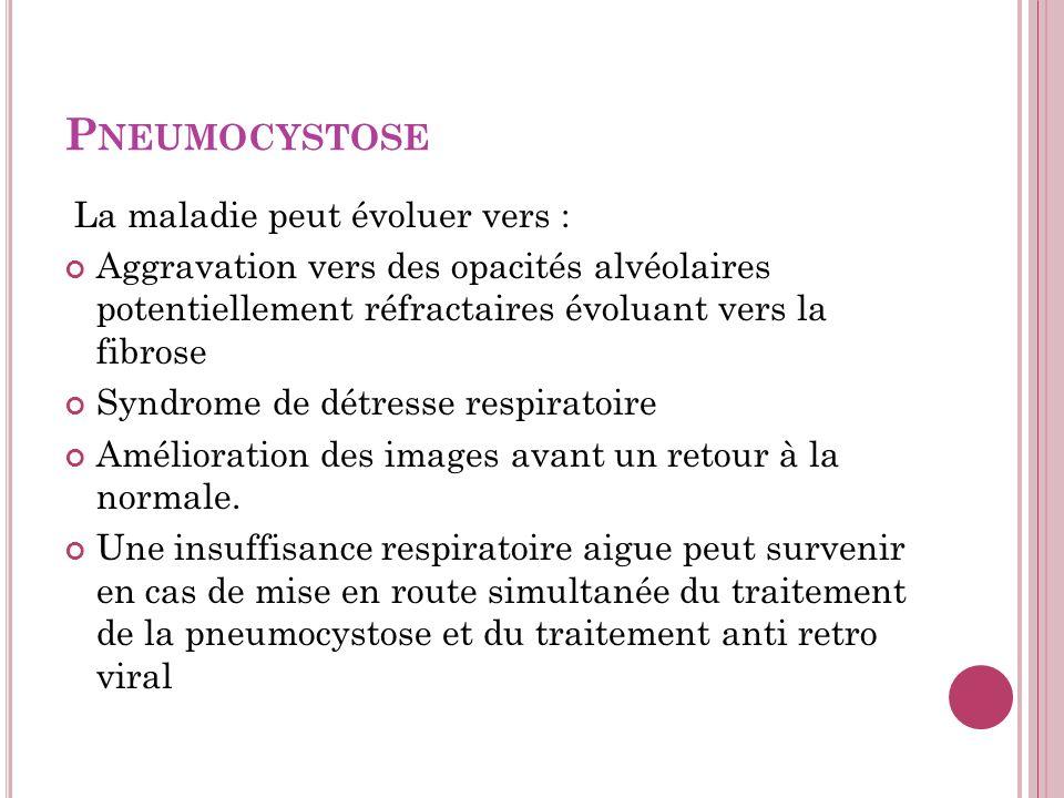 Pneumocystose La maladie peut évoluer vers :