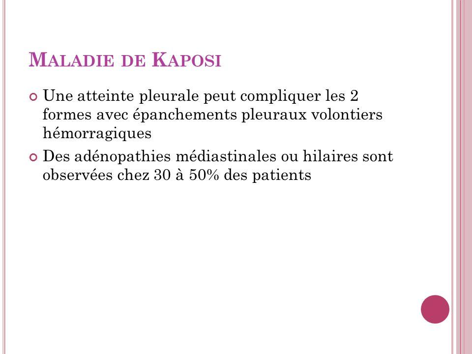 Maladie de Kaposi Une atteinte pleurale peut compliquer les 2 formes avec épanchements pleuraux volontiers hémorragiques.
