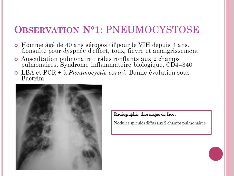 Observation N°1: PNEUMOCYSTOSE