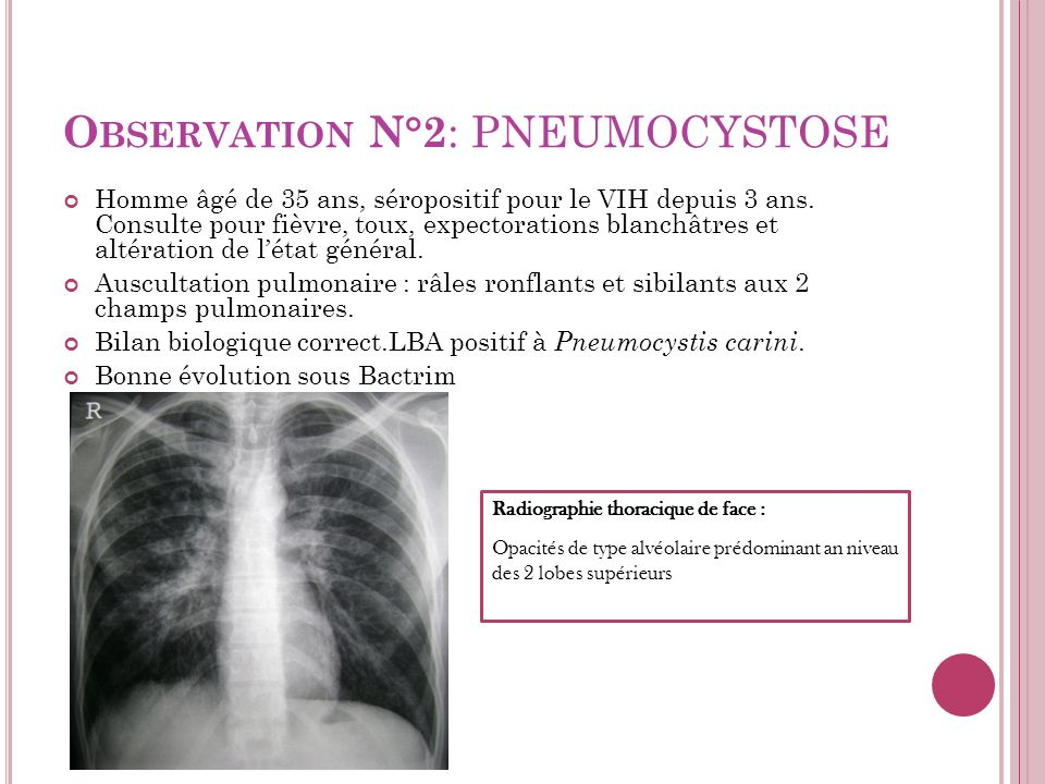 Observation N°2: PNEUMOCYSTOSE