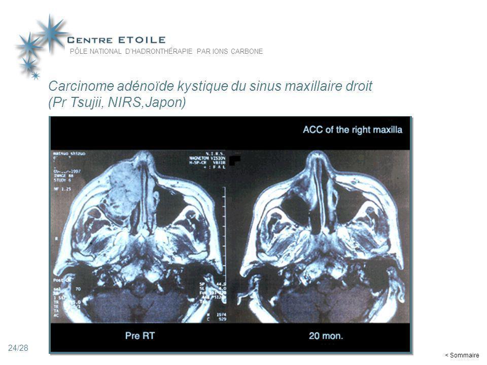 Carcinome adénoïde kystique du sinus maxillaire droit