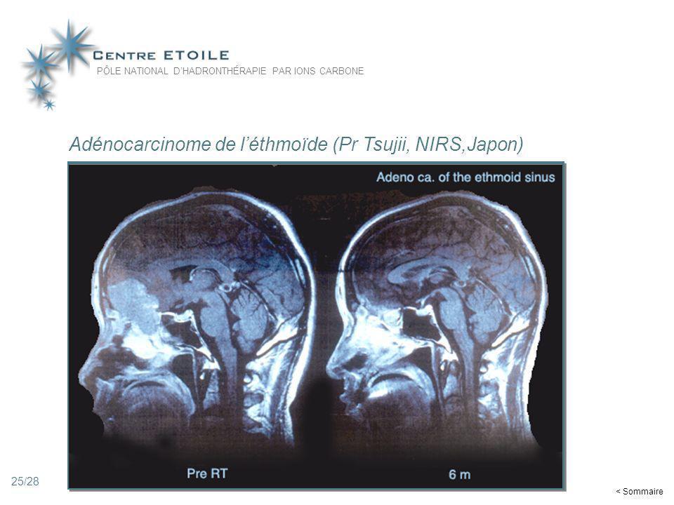 Adénocarcinome de l'éthmoïde (Pr Tsujii, NIRS,Japon)