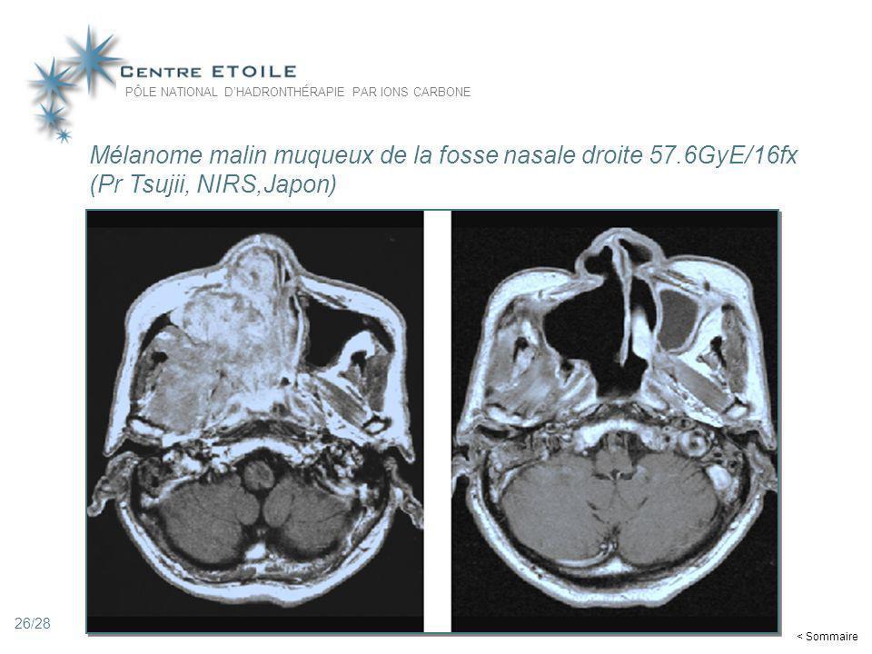 Mélanome malin muqueux de la fosse nasale droite 57.6GyE/16fx