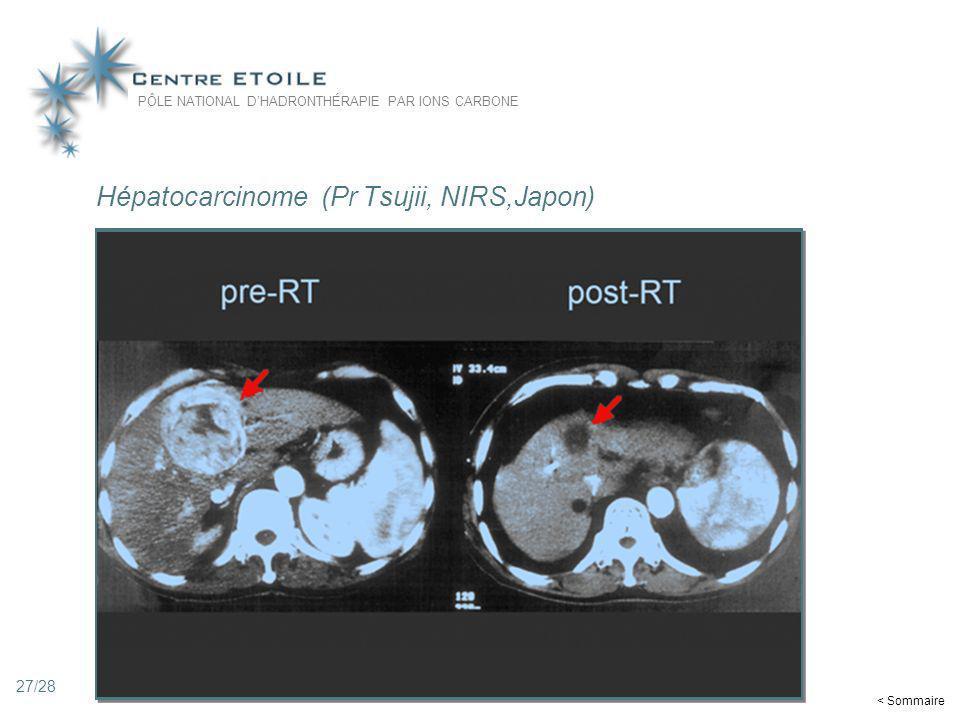 Hépatocarcinome (Pr Tsujii, NIRS,Japon)