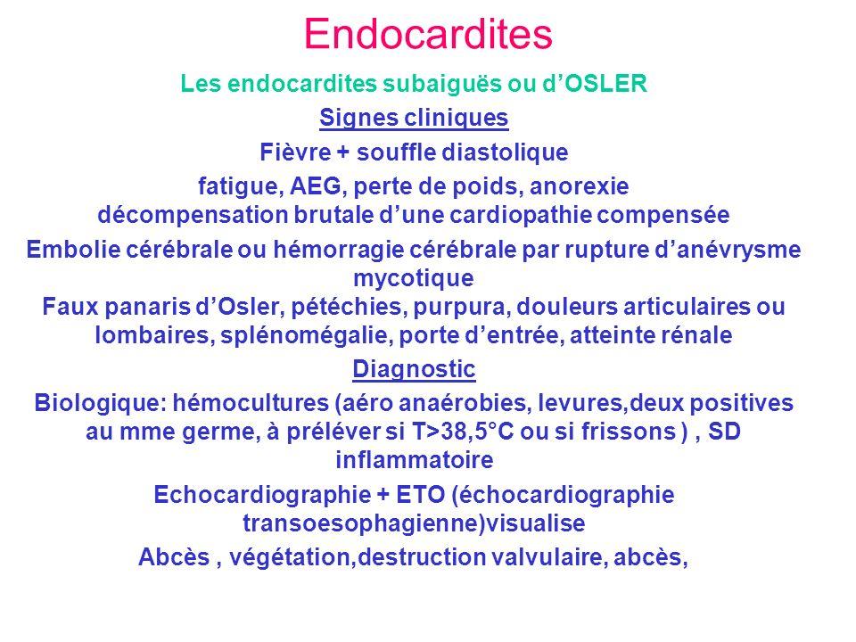 Endocardites Les endocardites subaiguës ou d'OSLER Signes cliniques