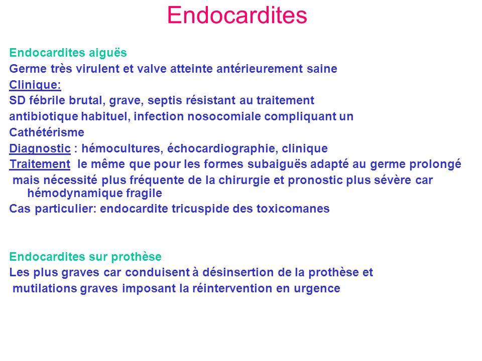Endocardites Endocardites aiguës