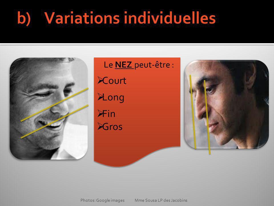 b) Variations individuelles