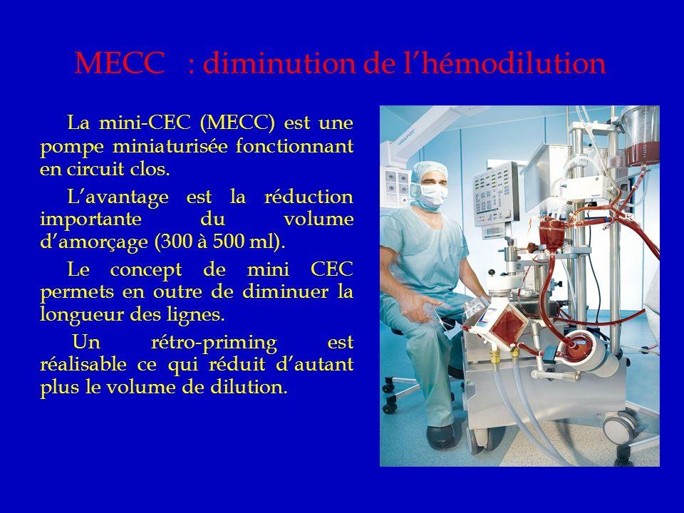 MECC : diminution de l'hémodilution