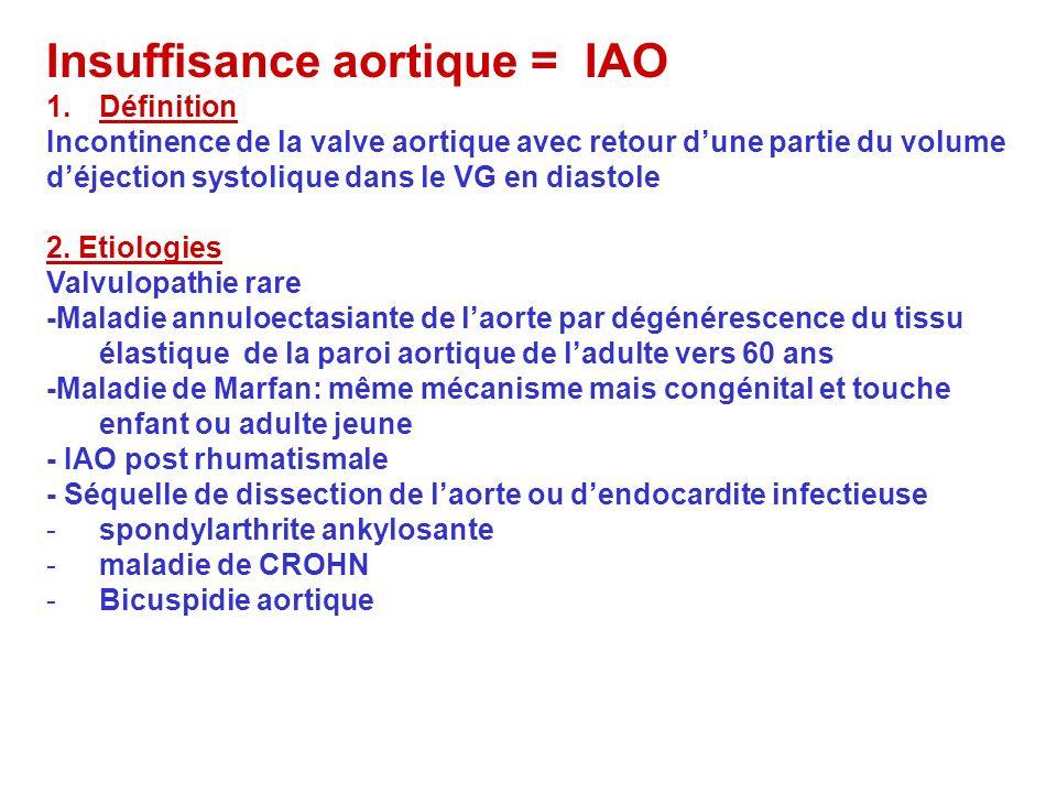 Insuffisance aortique = IAO