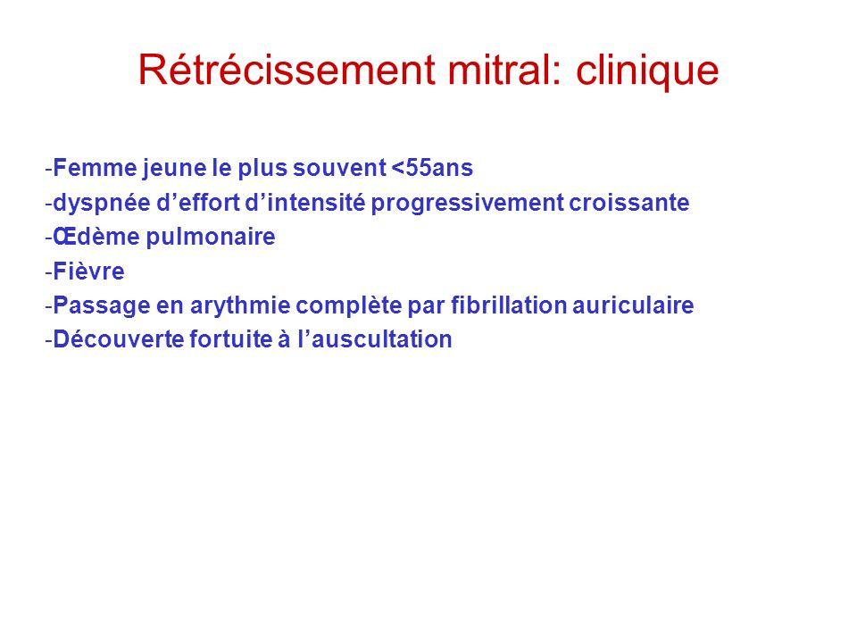 Rétrécissement mitral: clinique